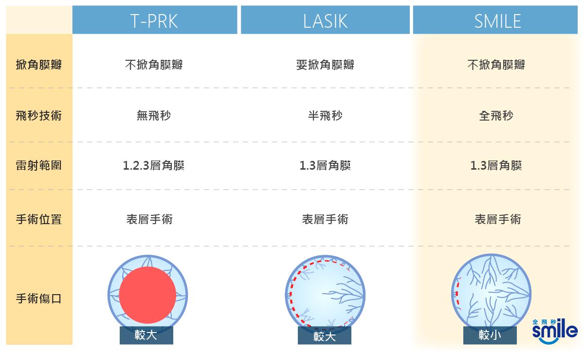 近視雷射比較,T-PRK,LASIK,SMILE,近視矯正.散光矯正