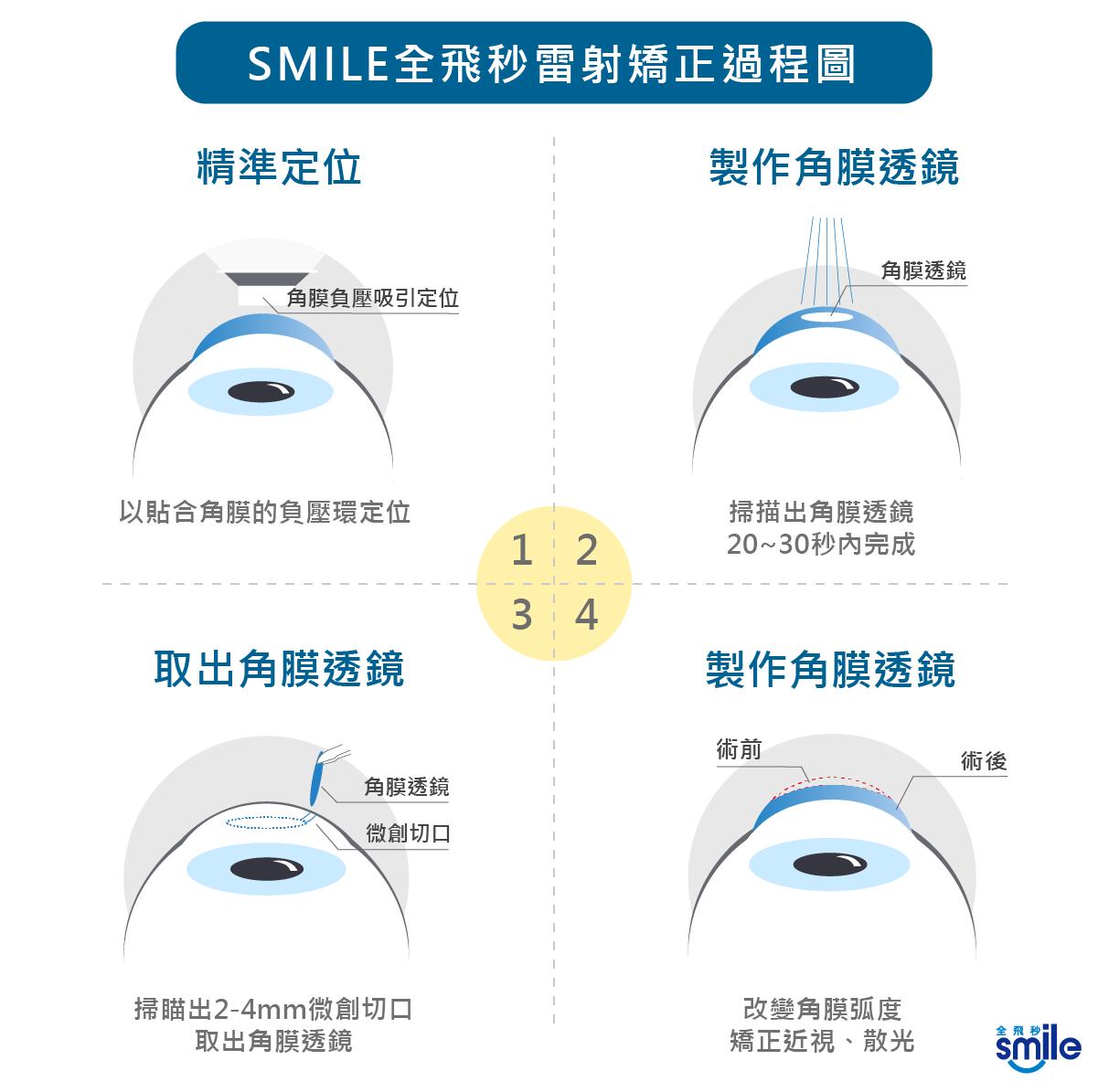 RelexSmile,Myopia,Myopialaser,eyes,smile,laser