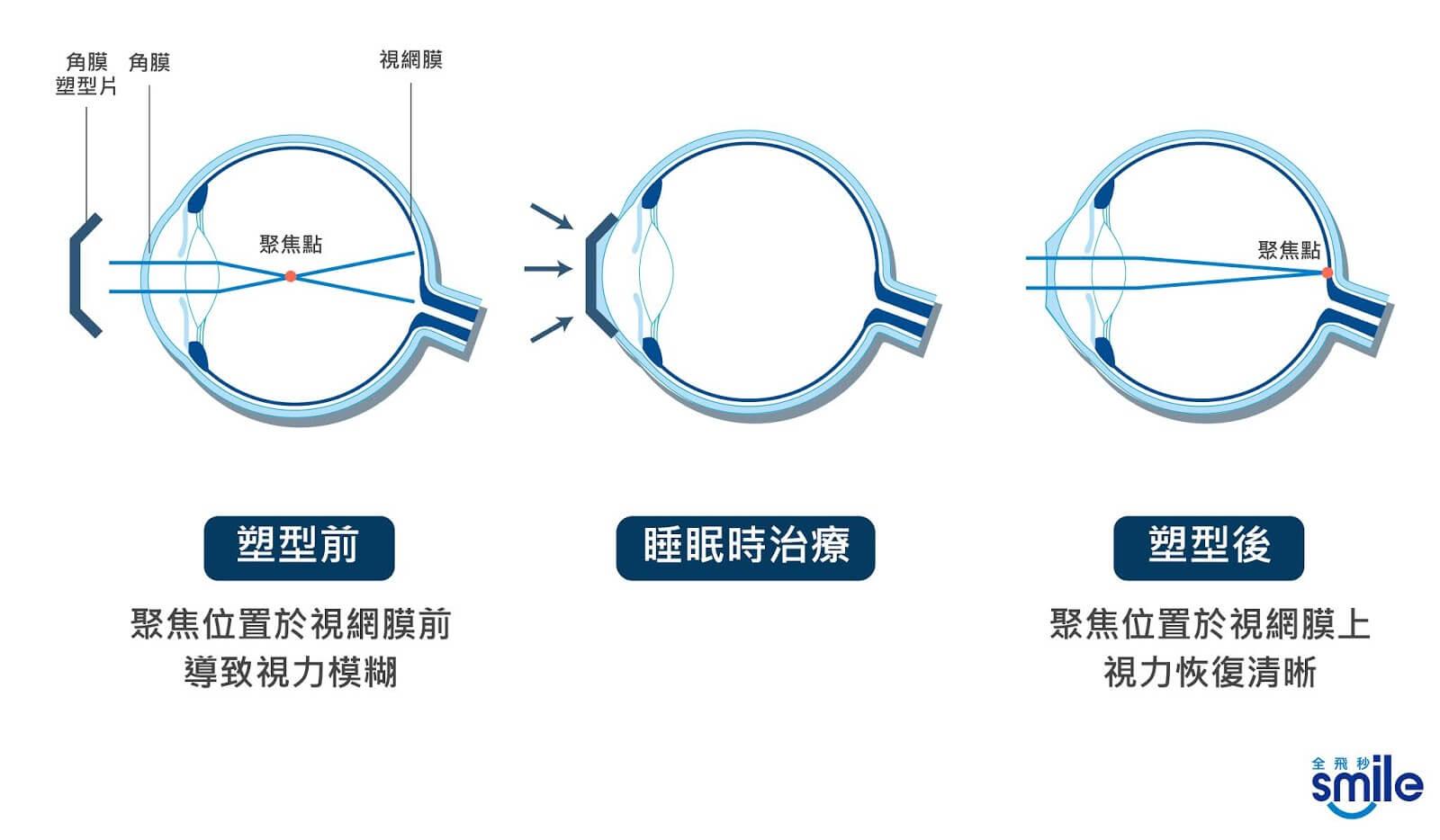 角膜塑型片治療過程
